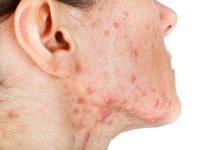 Akne Inversa im Gesicht