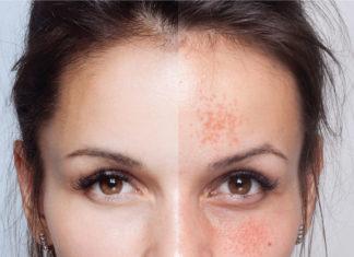 Gesichtshaut vor und nach einer kosmetischen Behandlung ( Depositphotos.com/ Whiteshoes911)