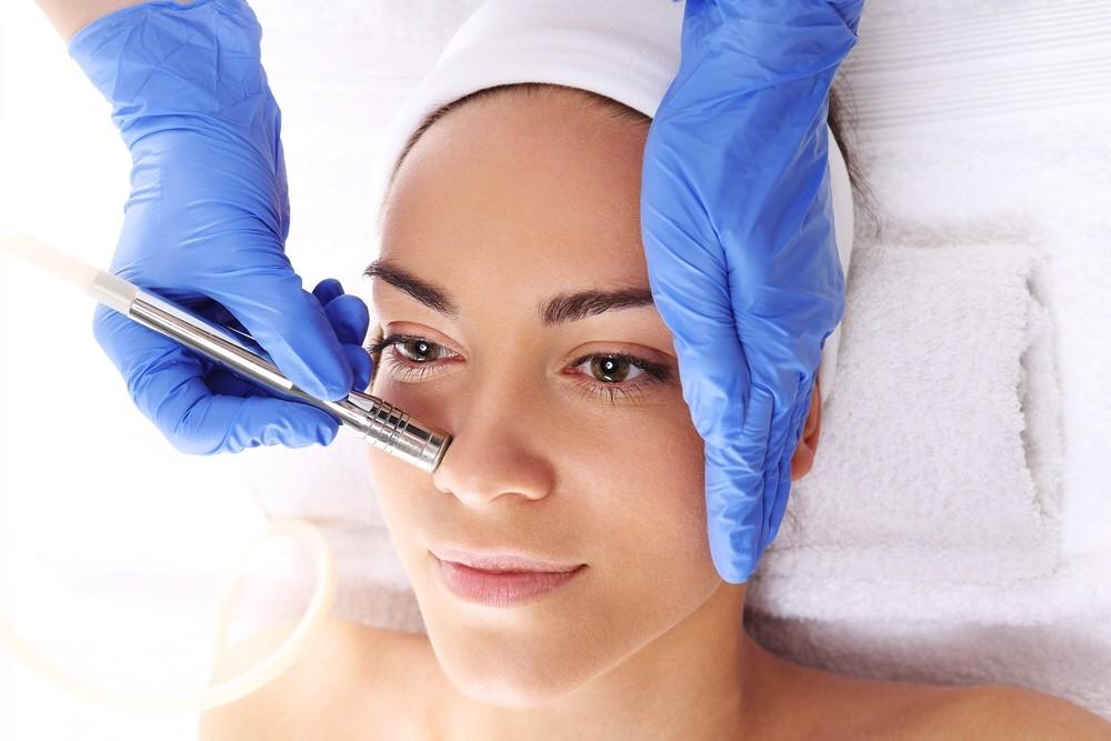 Eine Dermabrasion-Behandlung beim Dermatologen