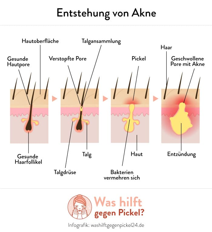 Die Entstehung von Akne - Infografik von washilftgegenpickel24.de