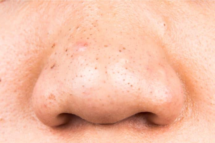 Mitesser auf der Nase (Thamkc - Depositphotos)