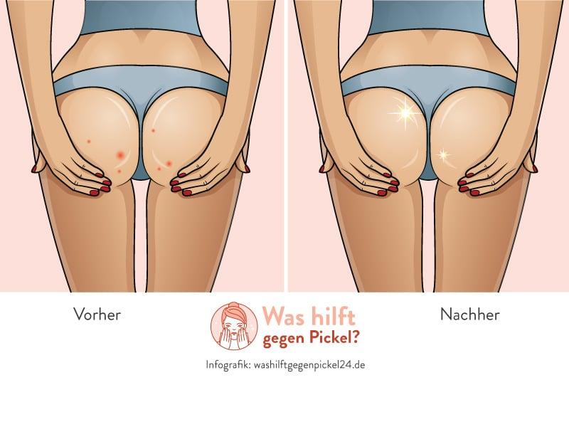 Pickel am Po - Vorher/Nachher Infografik (Copyright: Washilftgegenpickel24.de)