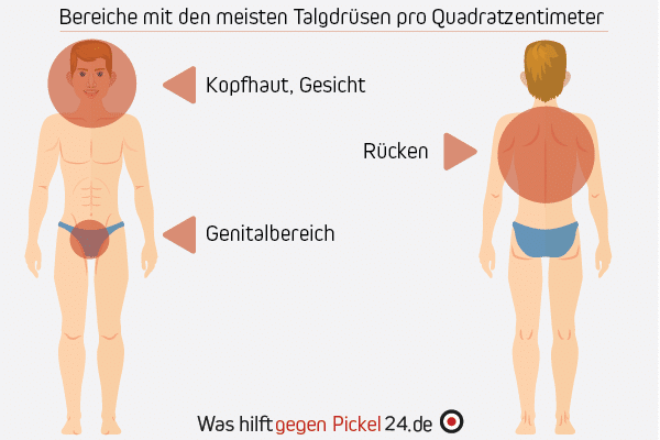 pickel am rücken mann was tun