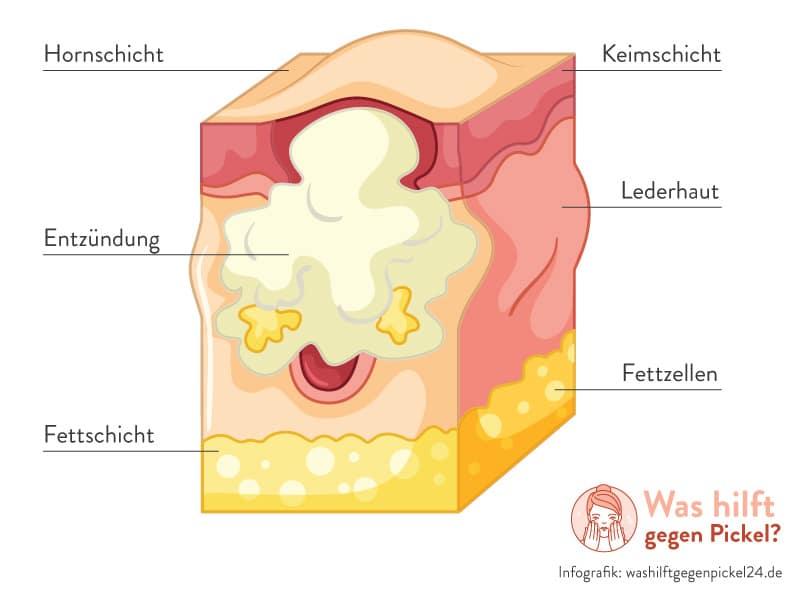 Pickel unter der Haut - Unterirdischer Pickel - Infografik von washilftgegenpickel24.de