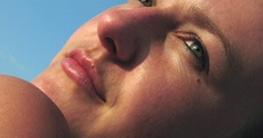 Frau nach Schönheitsoperation